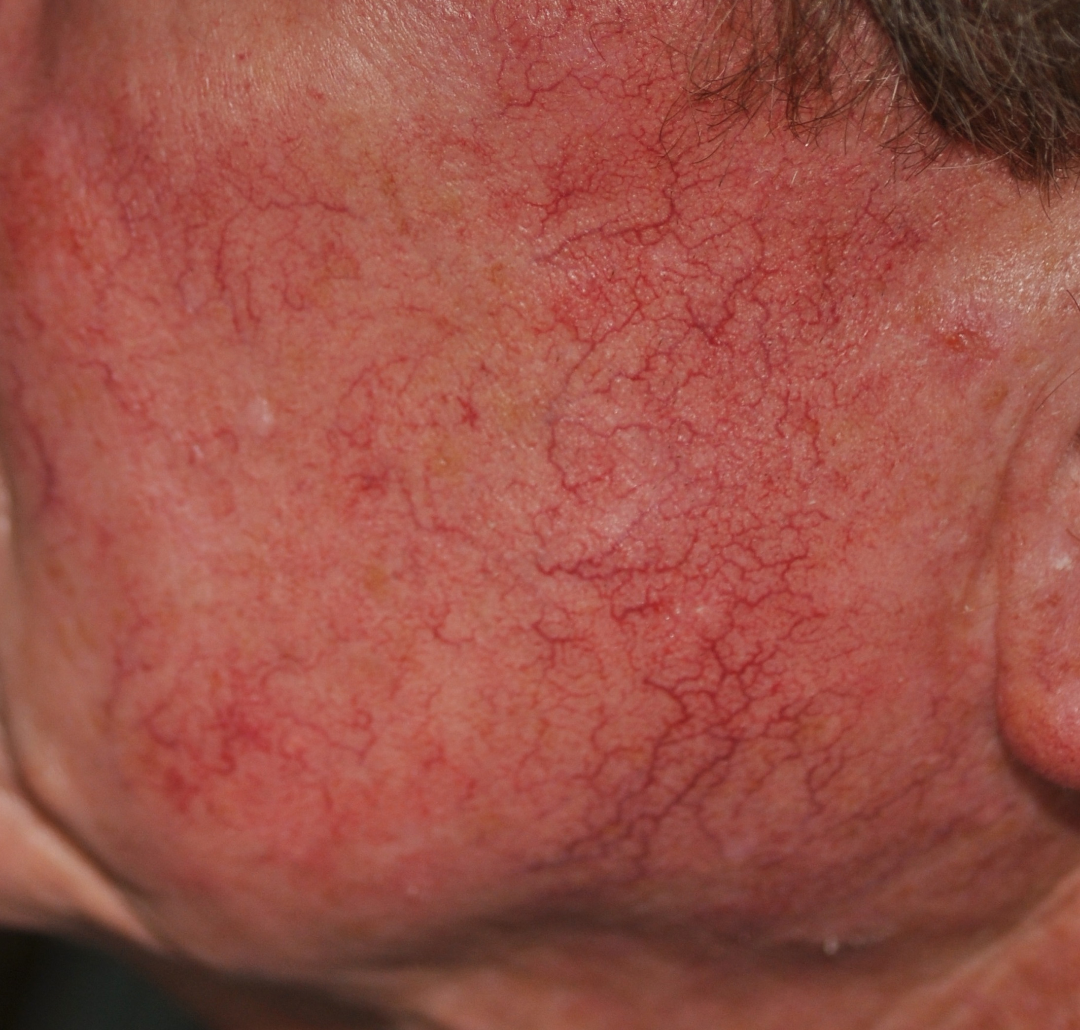 Rosacea before treatment
