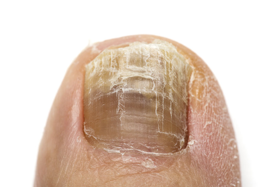 Fungal nail is a condition, more common as we age, involving an infection of the nail.