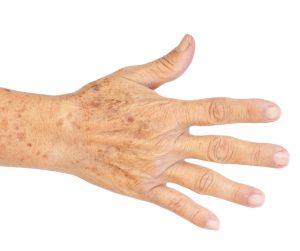 Hand ageing RU