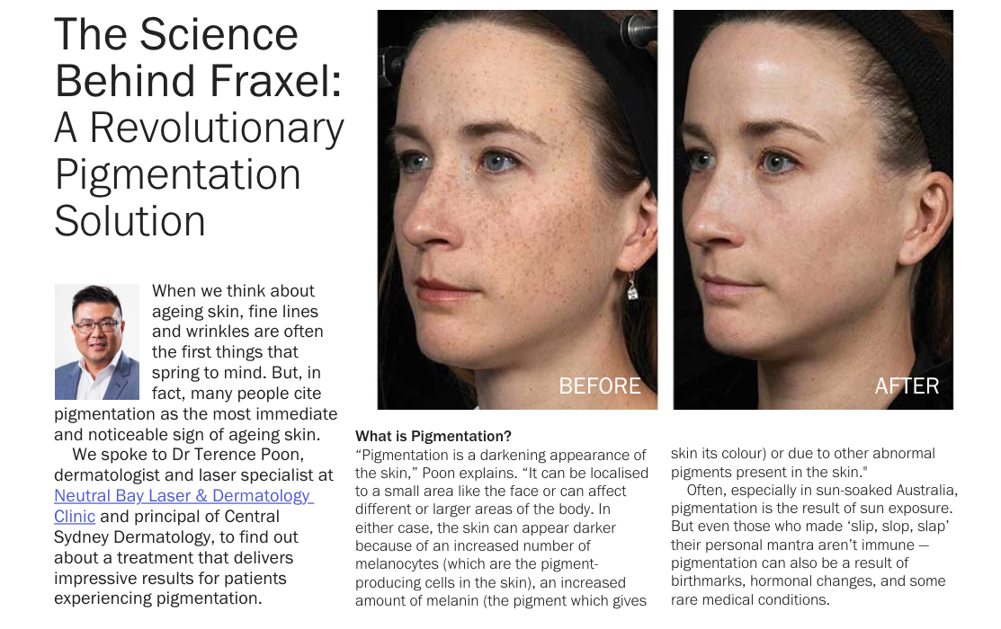 Dr Terence Poon was interviewed by Rescu magazine about Fraxel laser treatments